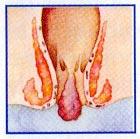αιμορροιδες εσωτερικές 2