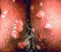 Κονδυλώματα latum